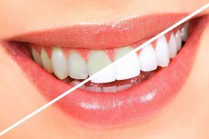 unident-beljenje-zuba