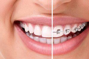 unident-ortodoncija